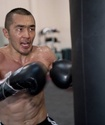 Шуменов показал свое лицо после операции, из-за которой отменился бой с Дортикосом