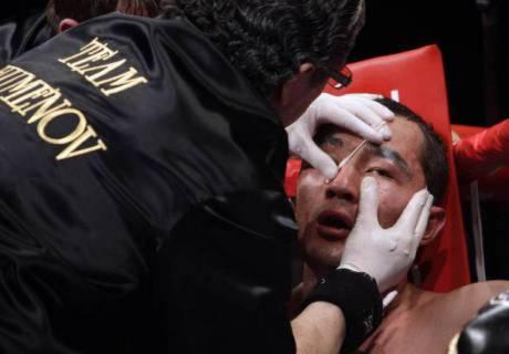 Реабилитация может длиться до года, а еще один удар может привести к полной слепоте - врач о травме Шуменова