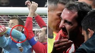 """Вратарь """"Валенсии"""" выбил несколько зубов капитану """"Атлетико"""" во время матча"""