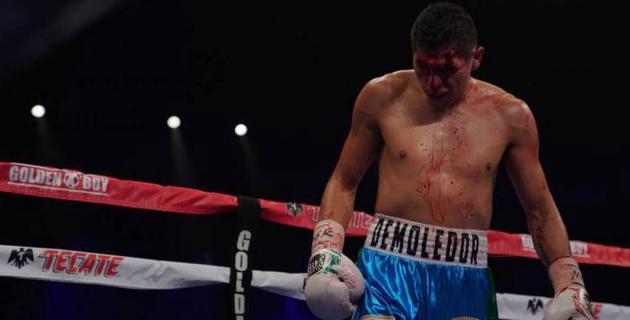 Нанесший казахстанцу из GGG Promotions первое поражение в карьере мексиканец готов дать реванш