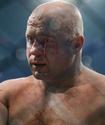 Федор Емельяненко рассказал о своем состоянии после поражения нокаутом за 35 секунд
