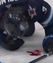 Игрок НХЛ заблокировал шайбу лицом и залил лед кровью
