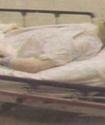 Показали фото Майкла Джексона во время вскрытия