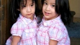 В Калифорнии хирурги разделили сиамских близнецов