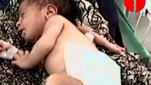 В Пакистане родилась девочка с третьей рукой на спине